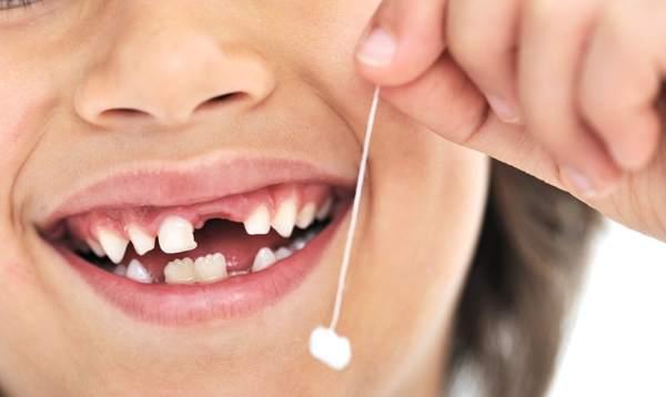 что делать с первым выпавшим молочным зубом у ребенка