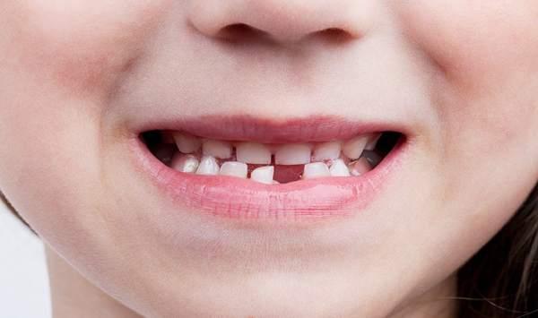 можно ли хранить молочные зубы ребенка примета